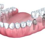 Zęby bielsze niż białe – o wybielaniu słów parę